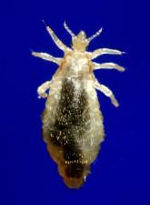 external, morphologic, features, members, genus, pediculus, include, elongated, abdominal, region