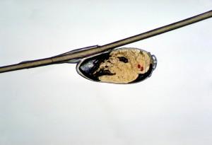 unhatched, pään, täi pediculus humanus, capitis, loinen