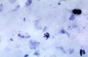 blood smear, micrograph, mature, plasmodium malariae, schizont, contained, merozoites