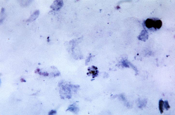 frottis sanguin, micrographie, matures, plasmodium malariae, schizonte, contenus, mérozoïtes