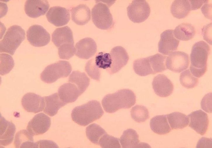 blood smear, old, immature, schizont, plasmodium malariae