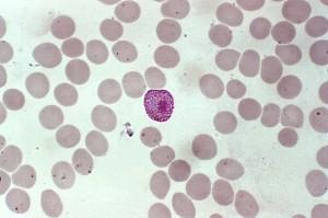 Makro, Mikrogametocyten, Produkte, erythrozytische, Zyklus