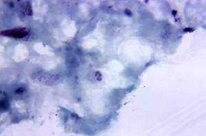 growing, plasmodium vivax, amoeboid, trophozoite, evidence, schuffners, dots
