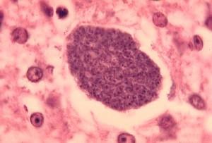 histopathologie, le paludisme, exo-érythrocytaire, les formes, le foie, parasite