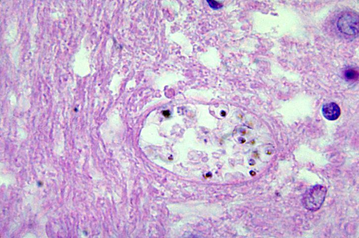 histopathologie, le paludisme, le cerveau, mature, schizontes, parasit