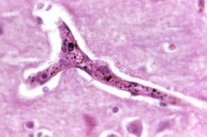 histopatología, malaria, pigmento, cerebro, capilar