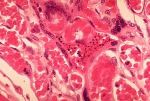 histopathologie, plasmodium falciparum, le paludisme, le placenta