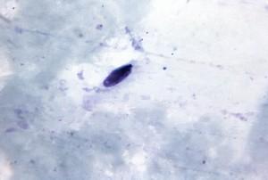 gruesa, película, micrografía, alargada, artefacto, de esporas, de cerca, se asemeja, por P. falciparum, los gametocitos, mag, 1125x