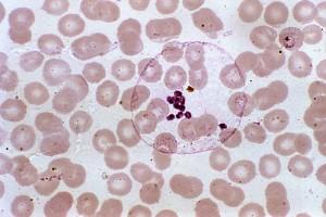 micrograph, mature, plasmodium ovale, schizont, separated, merozoites, mag, 1000x