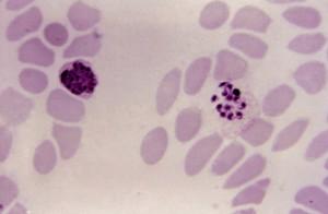 mikroskopische Aufnahme, reif, unreif, Plasmodium vivax, schizont