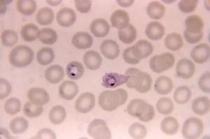micrographie, deux, ovale, anneau, forme, trophozoites, un, un, ovale