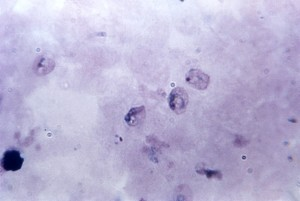 micrograph, growing, plasmodium trophozoites, schuffners, dot, stippling, clearly, defined
