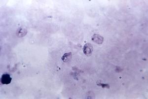 microfotografia, in crescita, trofozoiti Plasmodium, schuffners, dot, punteggiatura, chiaramente, definiti