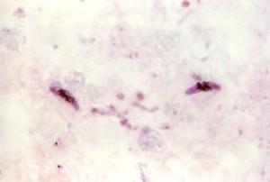 micrograph, two, elongated, plasmodium falciparum, gametocytes, pinkish, cytoplasm