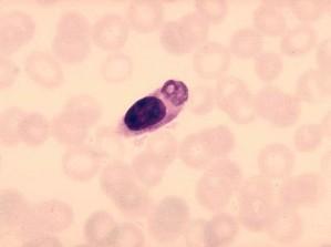 monocyte, ingested, malaria, parasite