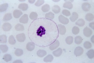 ovale, schizonts, merozoites, large, nuclei, clustered, mass, dark, brown, pigment