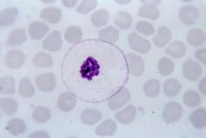 ovale, schizonts, merozoites, large, nuclei, clustered, mass, dark, brown, pigment