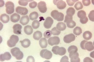 photomicrograph, plasmodium malariae, ring, stain, magnified, 1125x