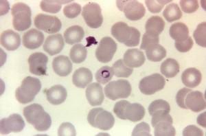 plasmodium malariae, cincin photomicrograph, noda, diperbesar, 1125 x