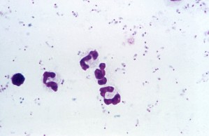 photomicrograph falciparum, parasites, form, numerous, rings, stain, mag, 1125x