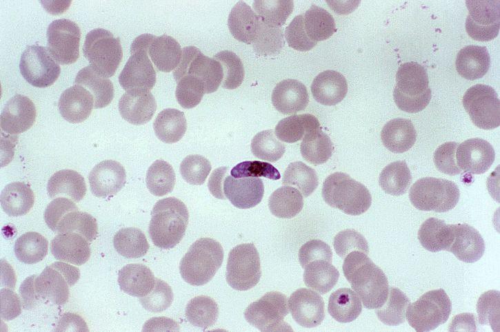 microphotographie, frottis de sang, macrogamétocyte, parasite, Plasmodium falciparum