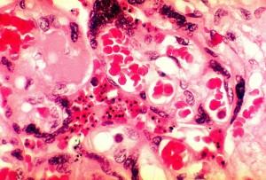 photomicrograph, placenty, tkáň, odhalující, přítomnost, plasmodium falciparum malárie, parazit