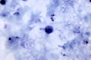 photomicrograph, prítomnosť, pestovanie, plasmodium vivax, trophozoite