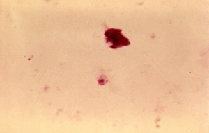 plasmodium falciparum, gametocyte, cells, blood, laboratory