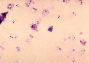 plasmodium vivax, gametocyte, mature, trophozoite, parasite