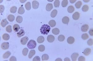 simian, blood, sample, presence, mature, simian, malaria, schizont, gametocyte