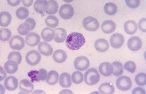 cellule, tessuti, al microscopio, maturo, Plasmodium vivax, trofozoite