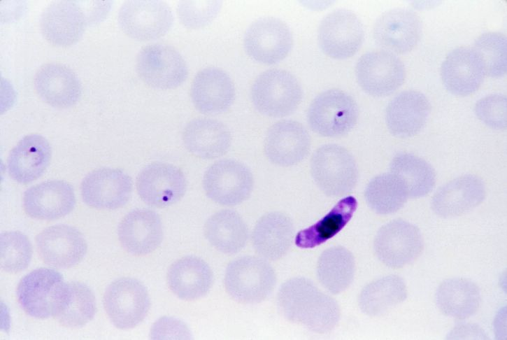 male, microgametocytes, female, macrogametocytes, ingested, anopheles, mosquito, blood, meal