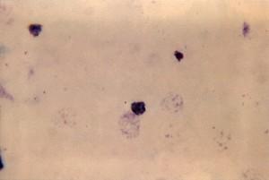 thick, film, micrograph, mature, plasmodium ovale, trophozoite