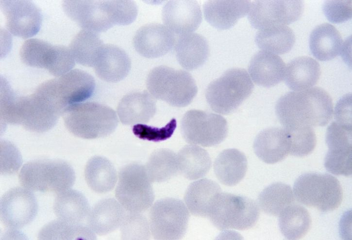 thin, film, micrograph, fused, platelets, resemble, plasmodium gametocyte