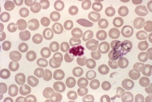 blood smear, micrograph, clump, platelets, resembled, malaria, schizont, stain, mag, 1000x