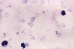 Micrografia, ovale, shows, crescendo, trofozoítos, irregular, citoplasma, evidente, pigmentação, pontilhado