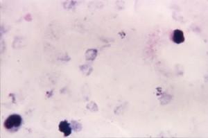 mikrograf ovale, menunjukkan, tumbuh, trophozoites, beraturan, sitoplasma, jelas, pigmentasi, menghias hasil