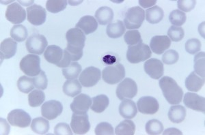 photomicrograph, compact, plasmodium malariae, trophozoite, stain, magnified, 1125x
