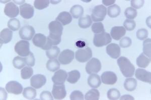 photomicrograph, kompaktní, plasmodium malariae, trophozoite, barva, zvětšené, 1125 x