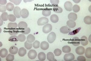 tlstý, film, MIKROGRAFICKÉ, zmiešaný, falciparum, malariae, parazitárne, infekcie