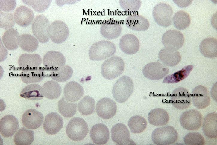 grosso, filme, Micrografia, misturado, falciparum, infecção parasitária, malariae,