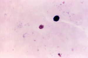 tyk, film, photomicrograph, plasmodium malariae, gametocyte, bejdse, teknik