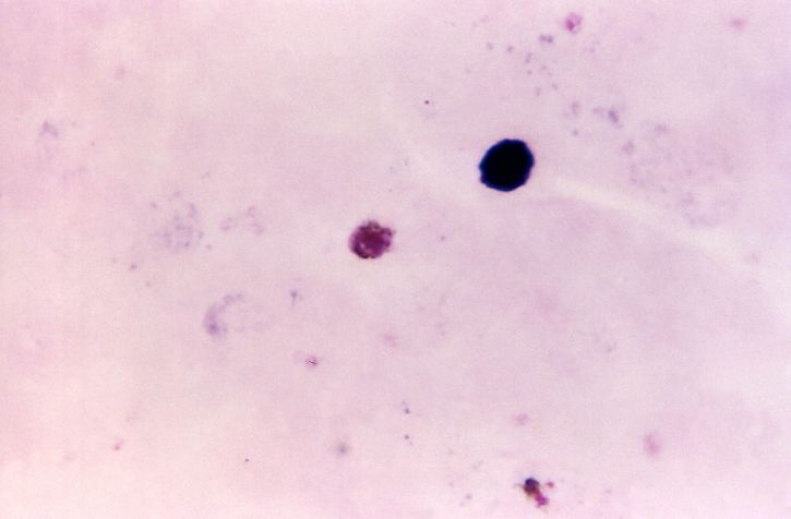 paksu, elokuva, photomicrograph, plasmodium malariae, gametocyte, tahra, tekniikka