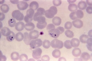 thin, film, micrograph, plasmodium vivax, ring, form, trophozoite