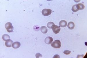 ultrastructural, morphology, exhibited, ring, form, plasmodium falciparum, malaria, parasite