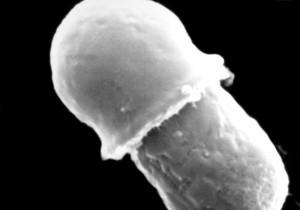 MIKROGRAFICKÉ, malassezia lipophilis
