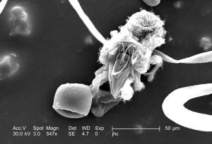 mitesnanorchestes, famille, nanorchestidae, festonnés