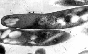 grammo, positivo, micobatteri, la tubercolosi, bacilli, causale, l'agente, la tubercolosi