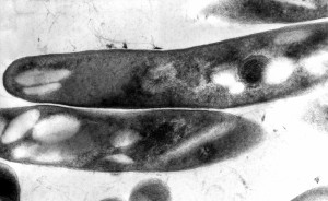 gram, positive, mycobacteria, tuberculosis, bacilli, causative, agent, tuberculosis