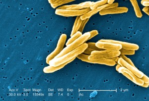 gram, positivo, micobatteri, la tubercolosi, batteri